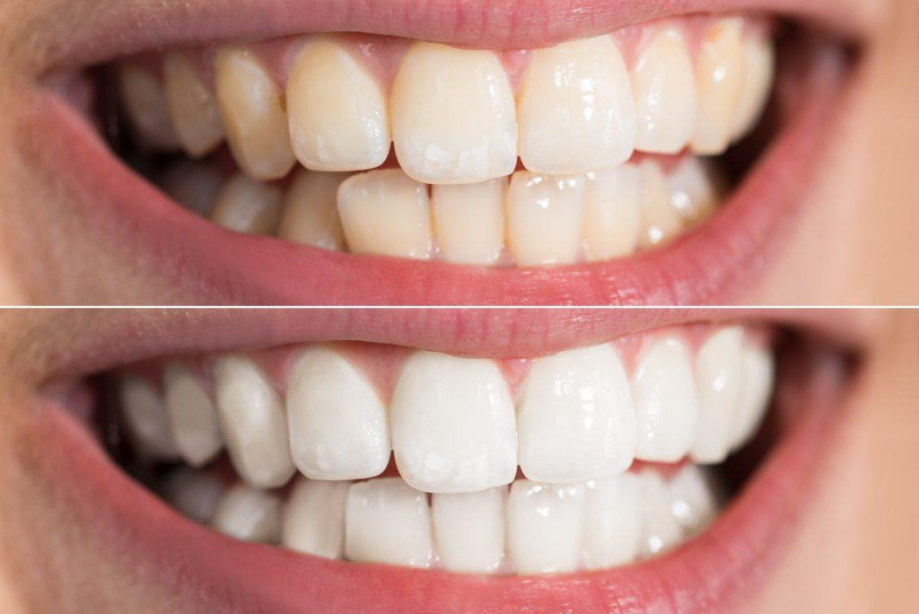 Brilliant white teeth