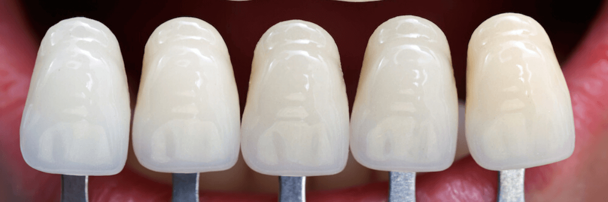 dental-veneers-cheltenham