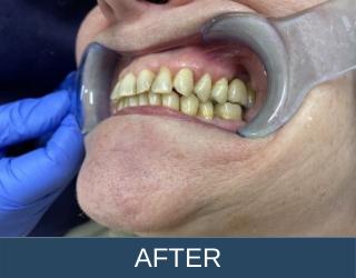 dental bridges after