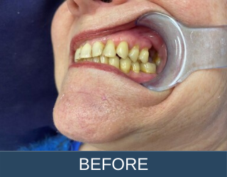 dental bridges before