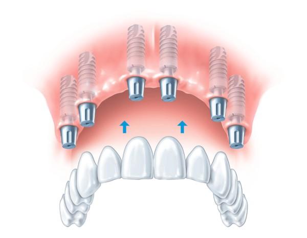 denture healing