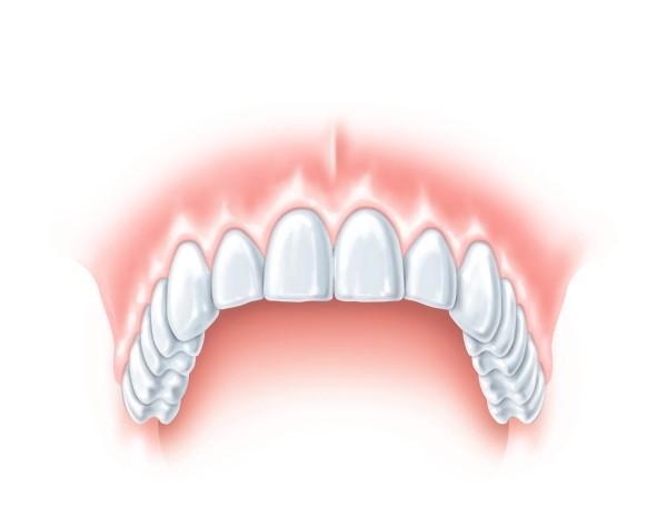 denture placing