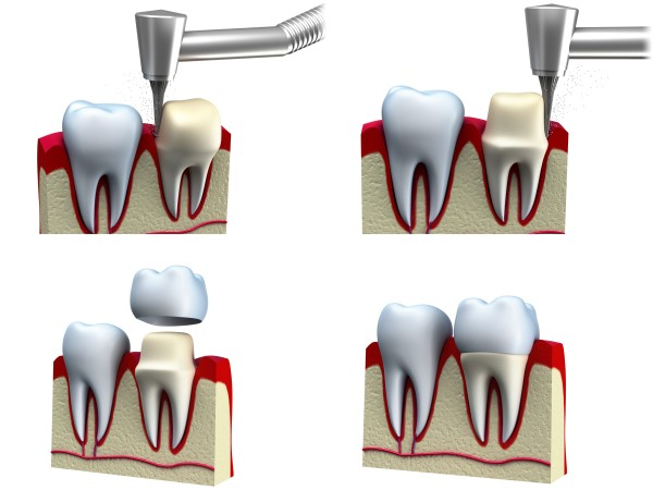 crowns procedure